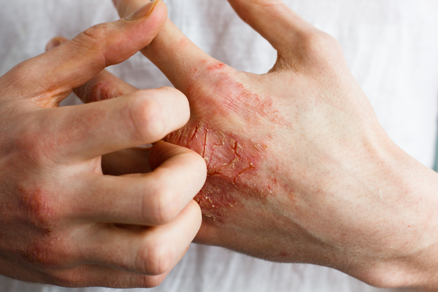 The problem with many people - eczema on hand.
