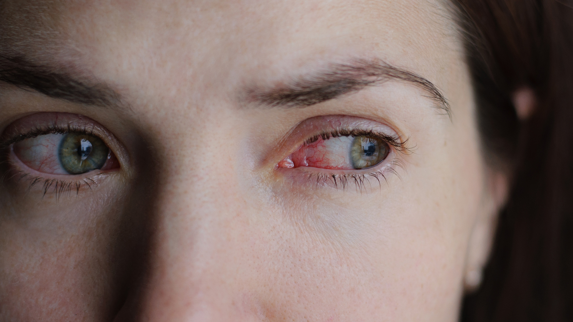 How to treat pink eye, naturally!