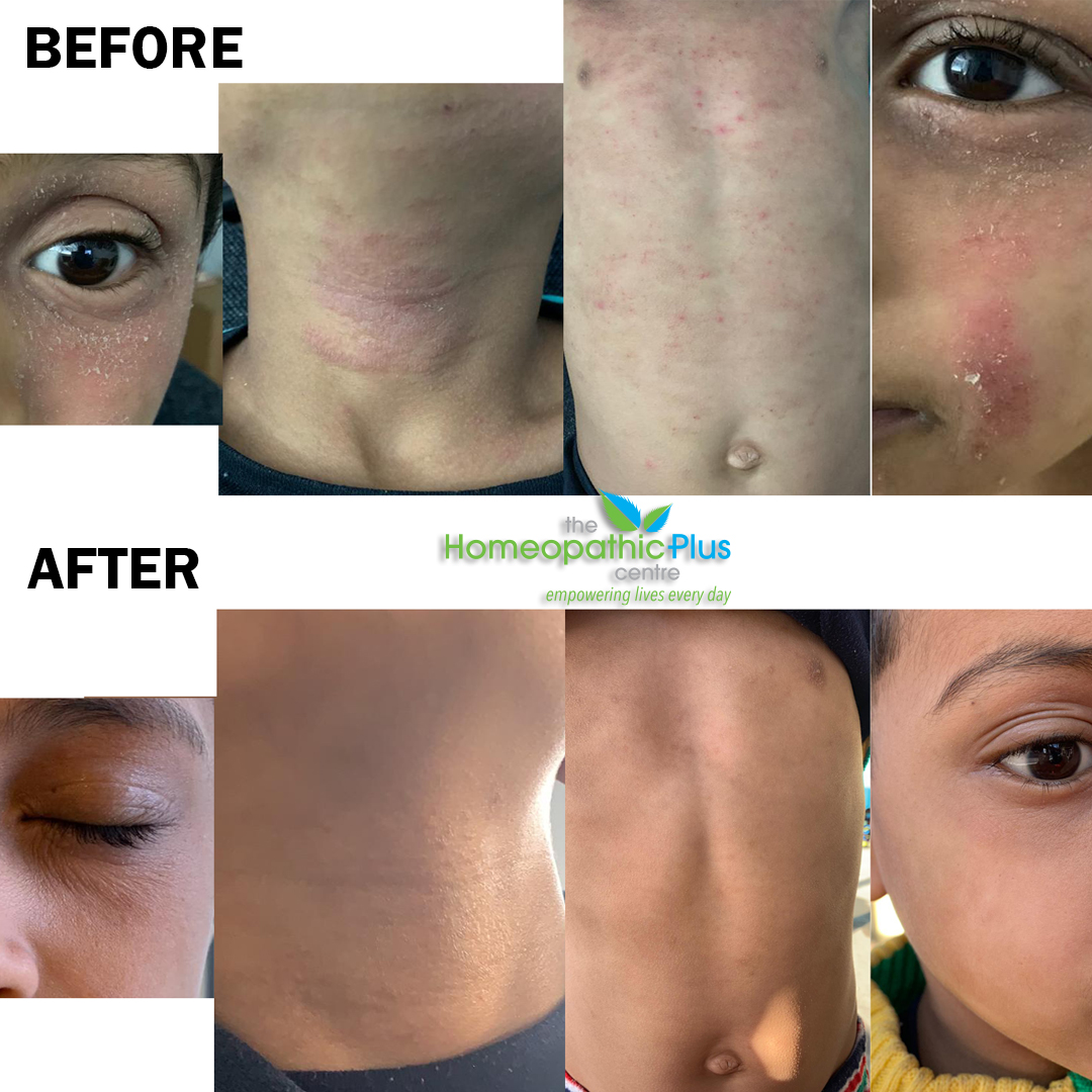 Eczema Treated Successfully